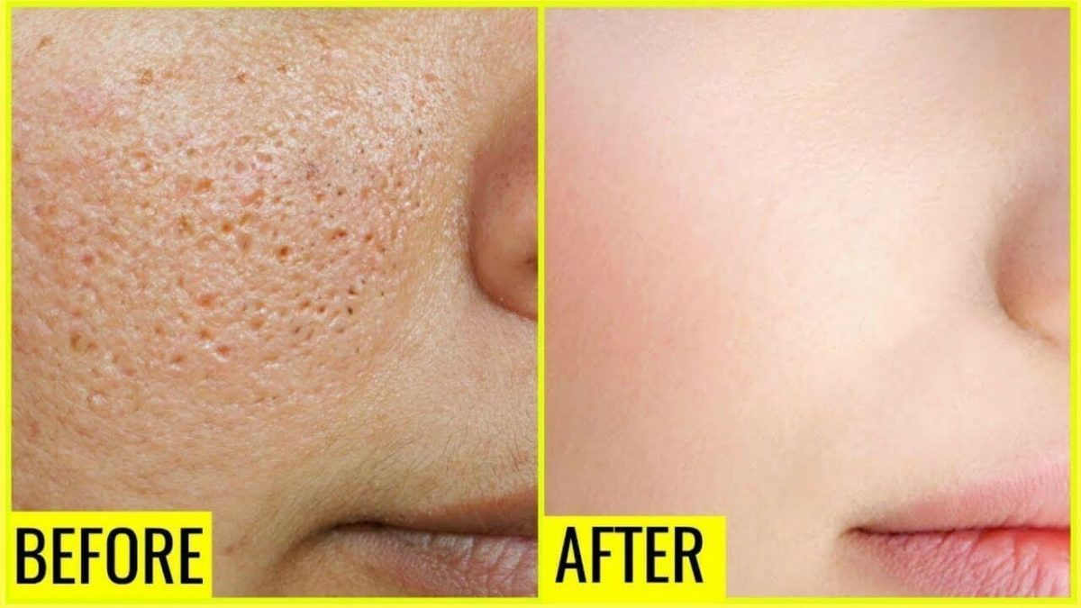 Steps to condominium your sagging pores and skin